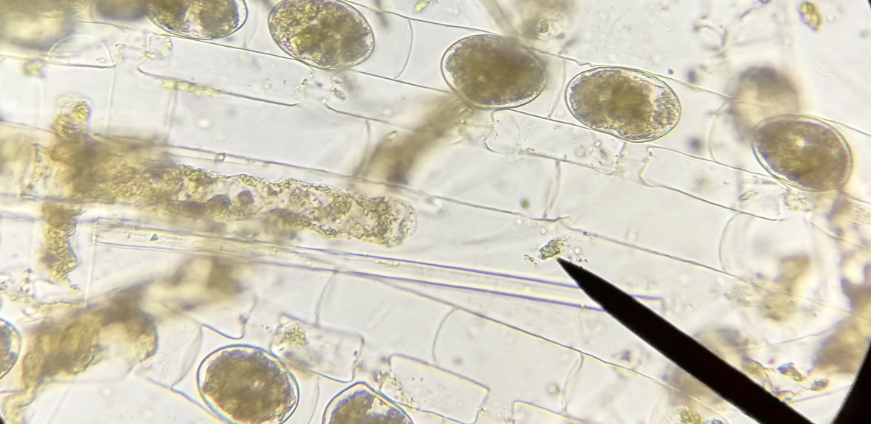 Spirogyrada eşeyli üreme